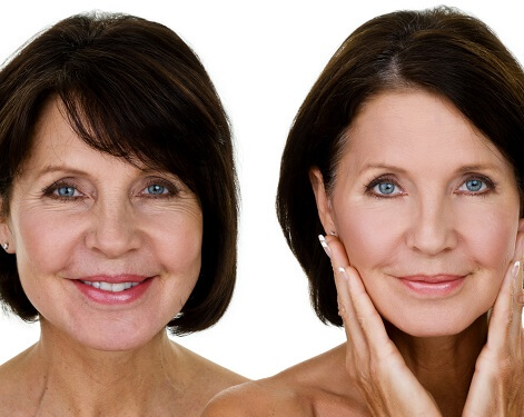 How Does Growth Hormone Therapy Make You Look and Feel Younger