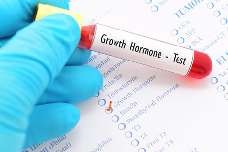 Human Growth Hormone Testing