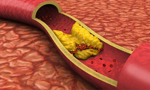 Lower Cholesterol and Triglyceride Levels